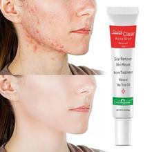 Acne Treatment Face Cream Scar Blackhead Remover Repair Oil Shrink Pores Control Skin Whitening Gel Care Cosmetics S2U4
