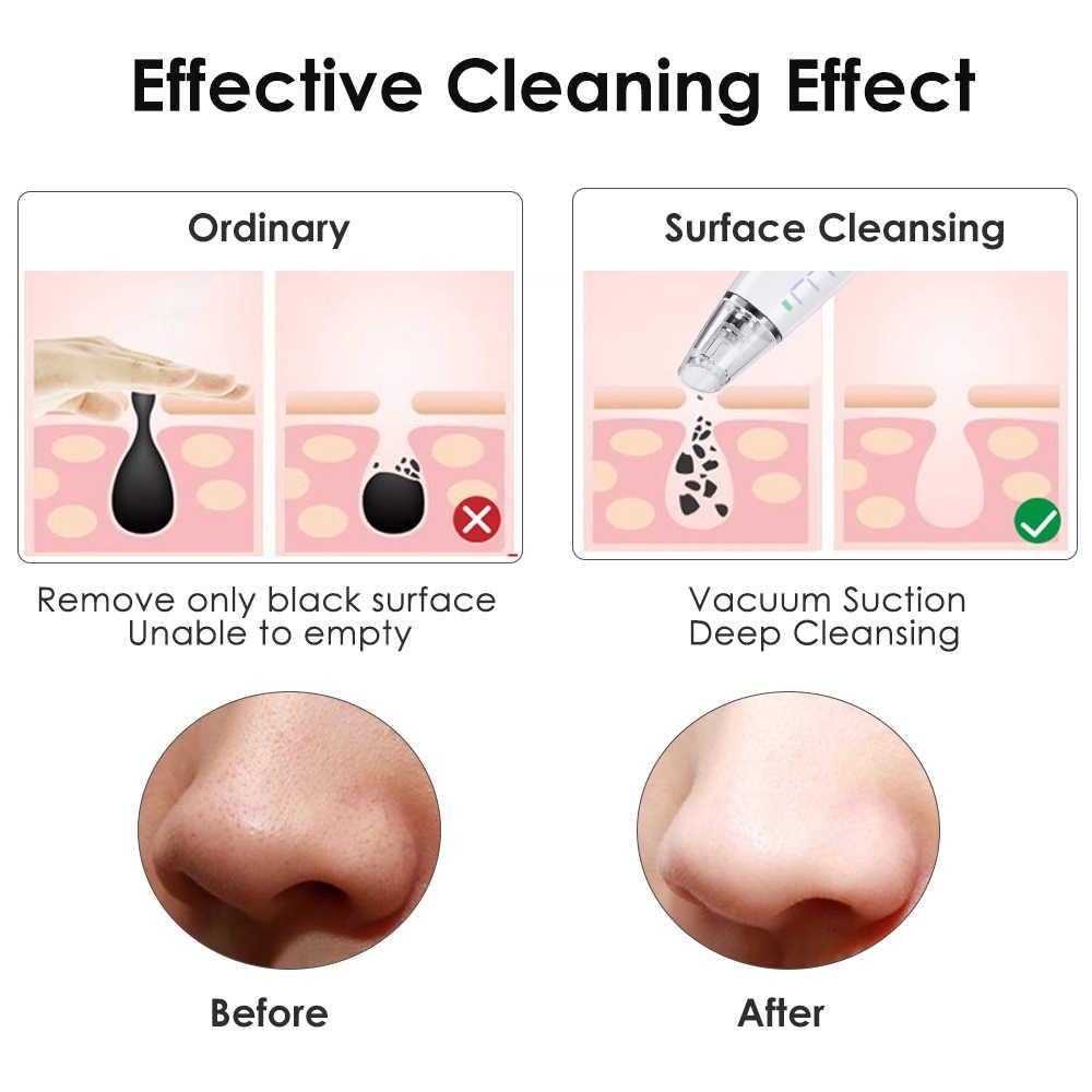 Komedo Remover Vakum Listrik Jerawat Remover Komedo Jerawat Extractor Hidung Wajah untuk Membersihkan Kulit Wajah Perawatan Kecantikan Alat