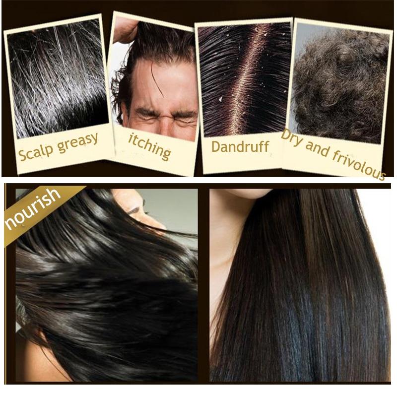 Купить с кэшбэком Polygonum Multiflorum Anti-Dandruff Shampoo For Anti Hair Loss Moisturizing Refreshing Oil Control Black Hair Care 200ml