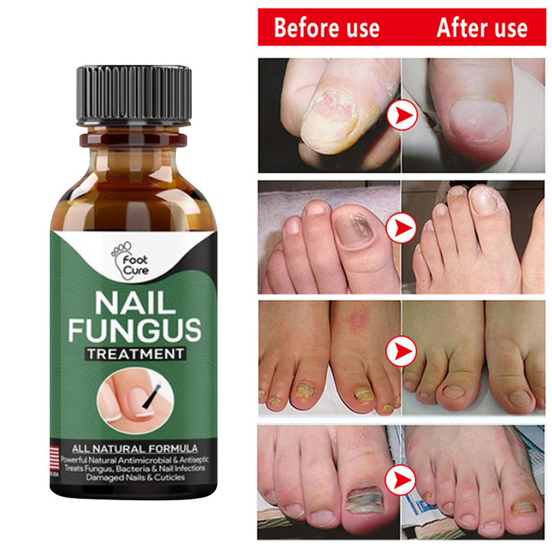 Экстракт грибка для восстановления ногтей, 30 мл, гель для удаления грибка ногтей, античувствительное лечение паронихии и онихомикоза для но...
