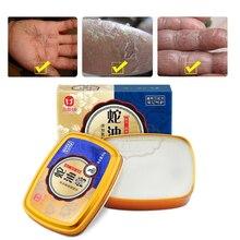 80g נחש שמן מכרז יד קרם חזק יד טיפול אנטיבקטריאלי אנטי chapping הלבנת מזין נגד הזדקנות עור טיפול קרם