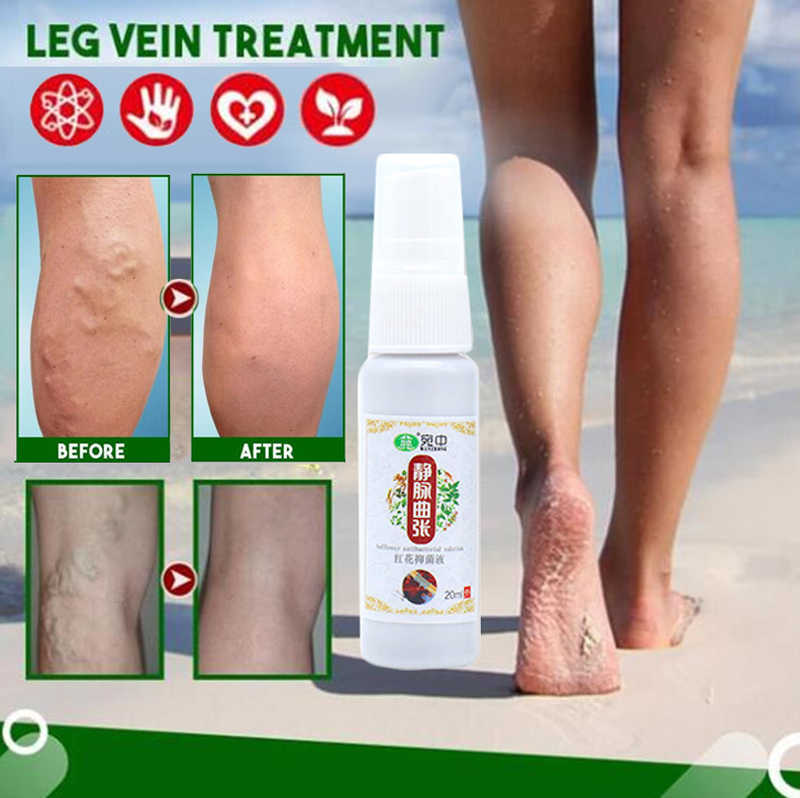 Picioarele frumoase și sănătoase cu un spray de la vene varicoase NoVarikoz
