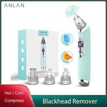 Anlan – aspirateur de pores pour le visage, appareil à LED pour soins de la peau, élimine les points noirs et chauds