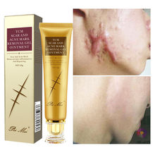 30g blizny potrądzikowe krem do depilacji pryszcze rozstępy żel do twarzy usuń trądzik wygładzający wybielanie nawilżający pielęgnacja ciała skóry Aichun