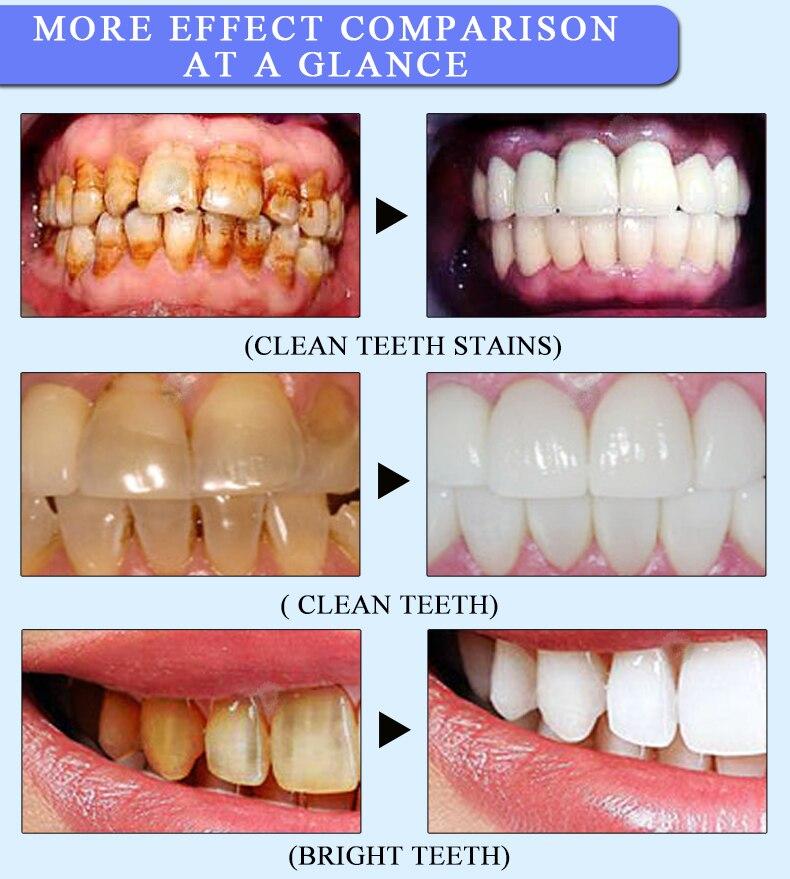 Crayon De Nettoyage bucco-dentaire