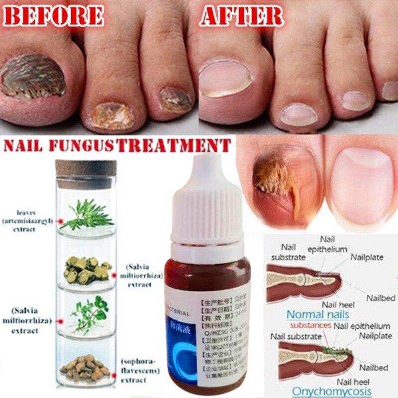 Fungal Nail Treatment Feet Care Oil Nail Foot Whitening Nail Repair Fungus Removal Gel Anti Infection Paronychia Onychomycosis