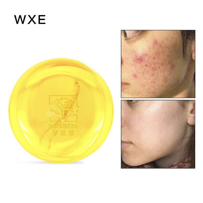 WXE 100% Natural Matrine Moisturizing Cleansing Soap Effectively Removes Mites And Removes Dirt And Acne Soap Whitening Soap