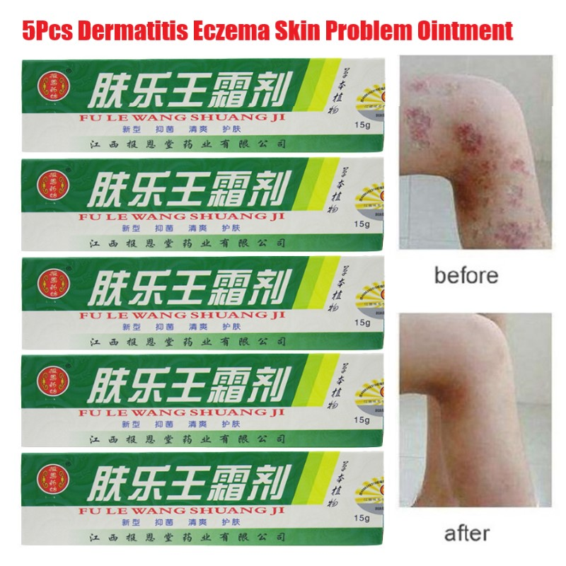 5Pcs/Lot Hot Selling 15g Skin Psoriasis Cream Dermatitis Eczematoid Eczema Ointment Treatment Psoriasis Cream Wholesale image