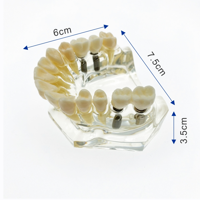 Dental Implant model Upper/Lower jaw with bridge and caries teeth model