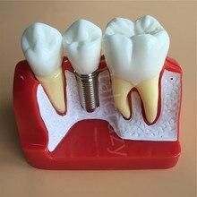 Pont de couronne amovible, analyse dimplant dentaire, modèle dentaire, démonstration dentaire