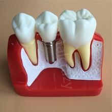 Puente de corona para análisis de implante, modelo de demostración Dental extraíble, modelo de dientes