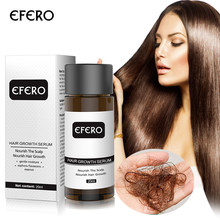 EFERO Fast Powerful Ginger Hair Growth Essence Oil Hair Loss Products for Hair Growth Serum Beard Growth Essential Health Care(China)