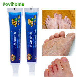 1pcs Anti Fungal Infections Foot Cream Treatment Athlete's Foot Pain Relief Beriberi Itch Erosion Peeling Blisters Feet Ointment