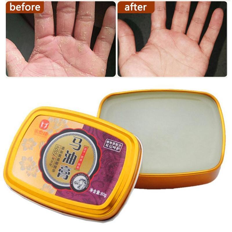 Snake Grease Horse Cream Hand Care Antibacterial Anti-chapping Whitening Nourishing Hand Skin Care Cream Hand Foot Care