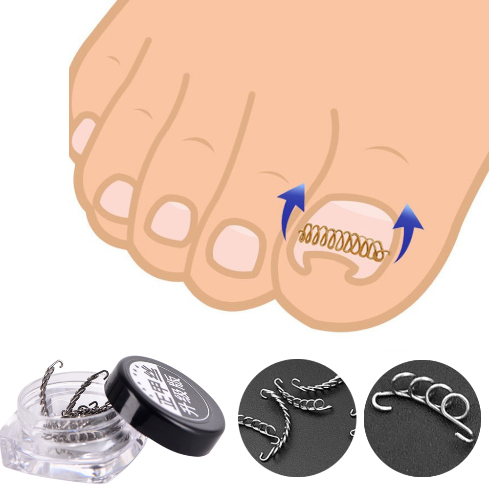 Professional 12pcs/set Nail Art Ingrown Toenails Correction Wire Recover Care Paronychia File Patch Corrector Foot Pedicure Tool