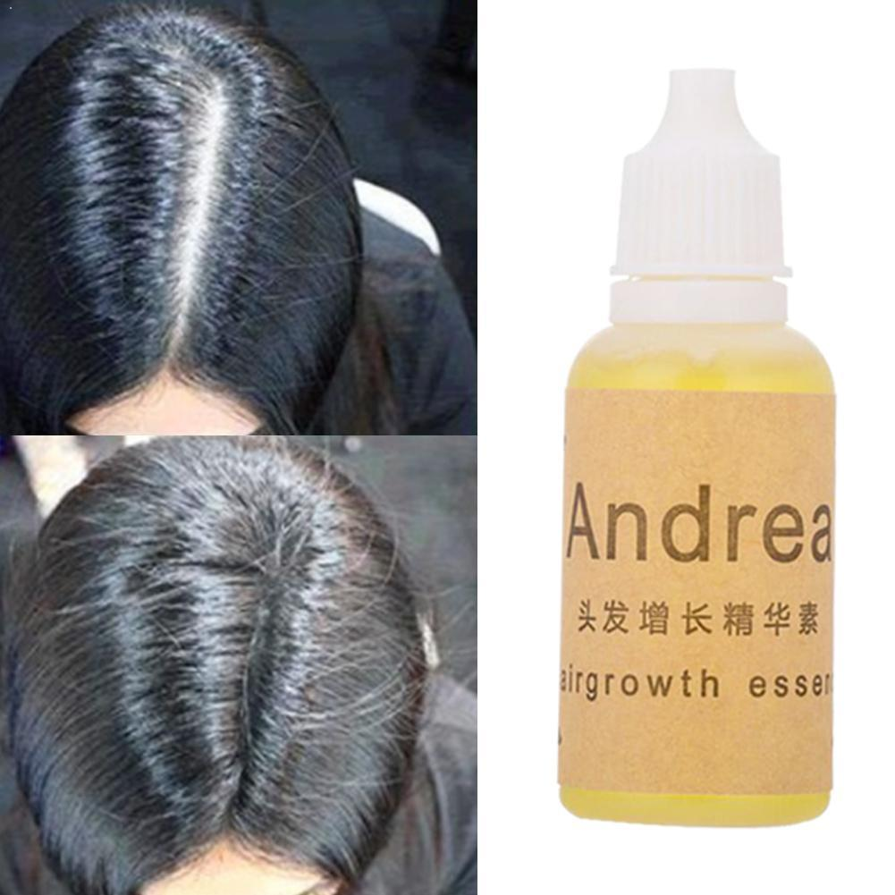 Andrea Hair Growth Oil Essence Thickener For Hair Extract Hair Hair Product Plant Loss Treatment Growth Natural Liquid Seru L7D4