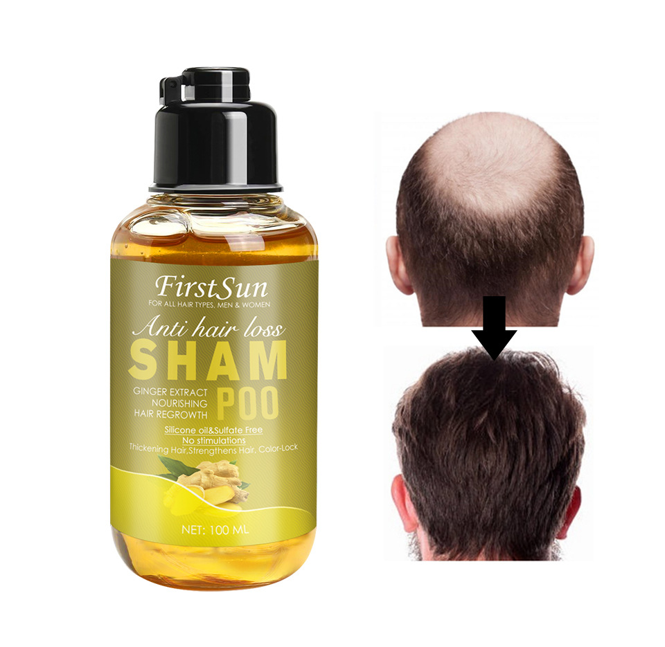 2Pcs 100ML Herbal Ginger Shampoo for Hair Growth Treatment for Hair Loss Thicker Fuller Hair Anti Dandruff Women & Men Hair Care