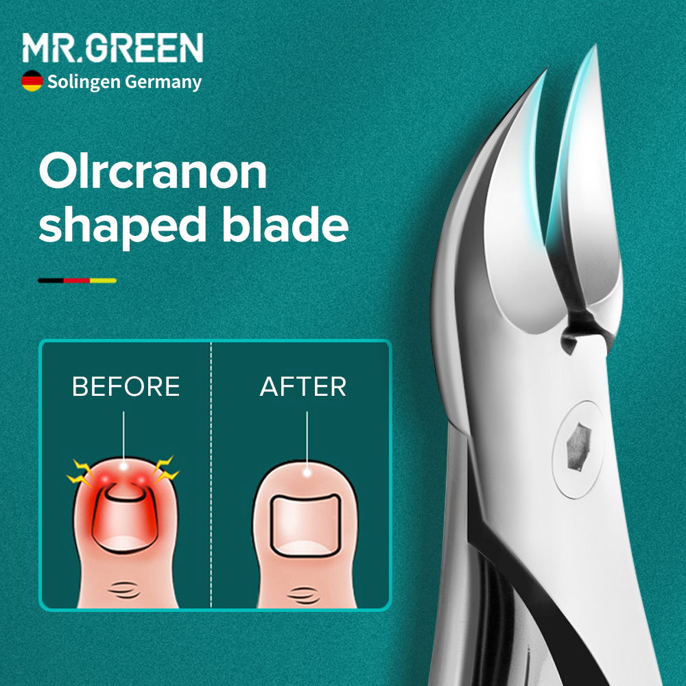 MR.GREEN Nail Clipper Toenail Nail Cutter for Thick Ingrown Anti Splash Stainless Steel Pedicure Tool Toe Nail Correction Groove