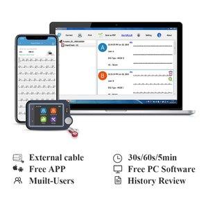 Image 3 - ECG/EKG Heart Monitor for Arrhythmia Afib 30s 5min Measurement Support Leadwire Bluetooth Free APP PC Report, Wellue Pulsebit EX