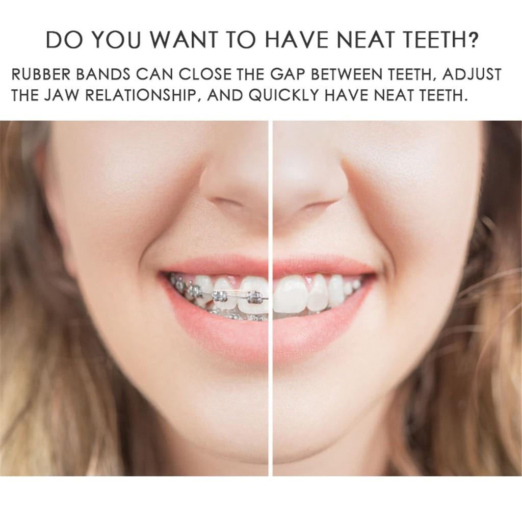 Maange 100 Pcs Dental Rubber Bands Orthodontic Elastics Braces