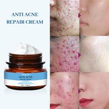 Anti acne reparação creme hidratante cuidados com a pele controle de óleo remover acne natural planta extrato acne tratamento