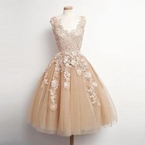 Fashion Champagne Lace Knee Length Graduation Short Dress Appliques Homecoming Dress Junior High Graduation Dresses