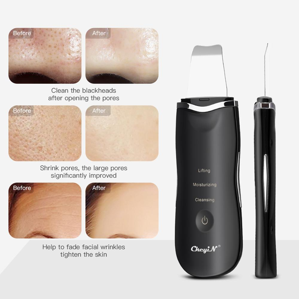 Image 2 - Ultrasonic Ion Deep Cleaning Skin Scrubber Peeling Shovel Facial Pore Cleaner Blackhead Remover Face Lifting USB Rechargeable 53Face Skin Care Machine   -