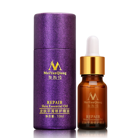 MeiYanQiong 10ml Acne Scar Repair Essential Oil Lavender Whitening Skin Care Essential Oil Remove Ance Burn Strentch Marks TSLM2 Lahore