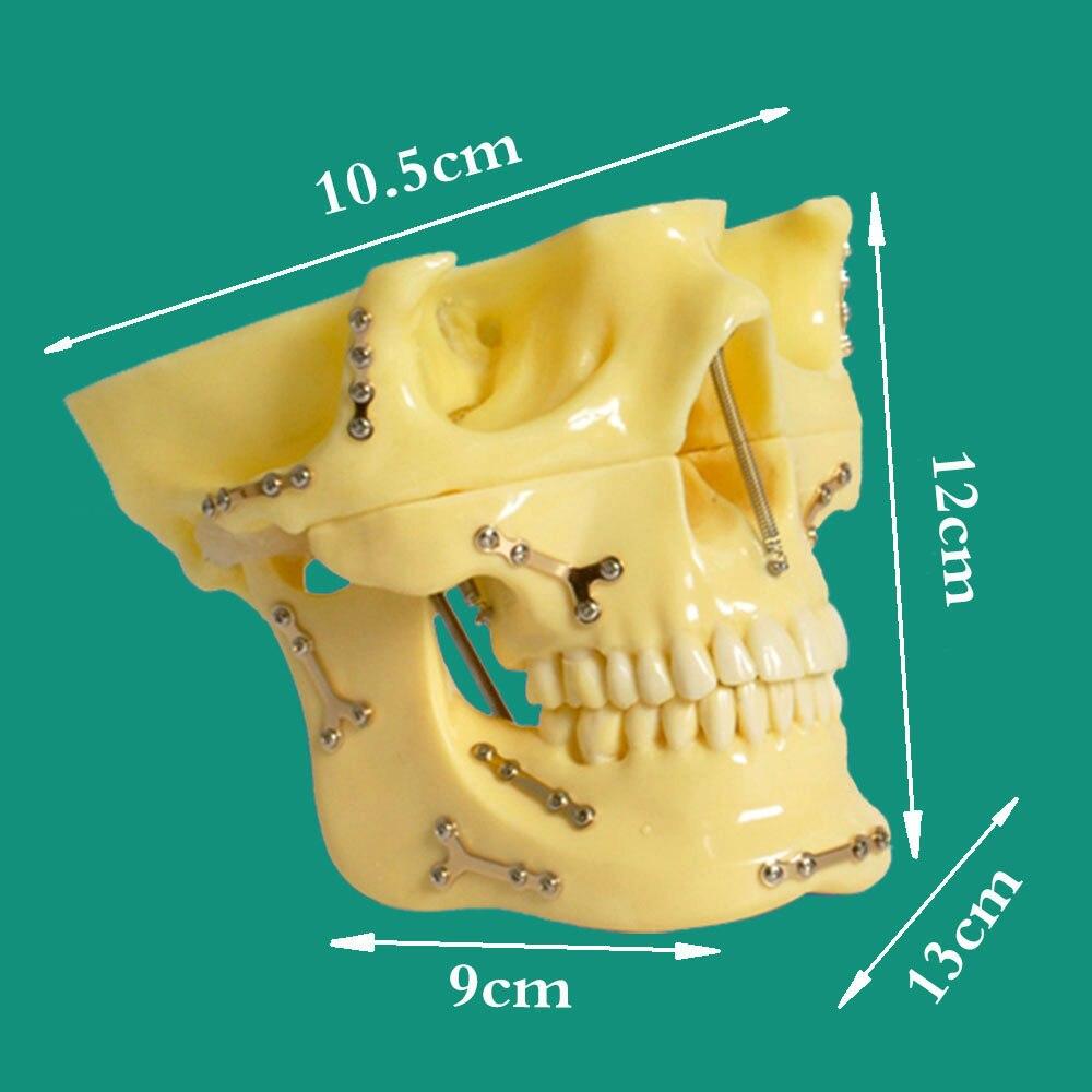 1 peca dental ortodontico implantar modelo de dentes de ancoragem para ensino e comunicacao