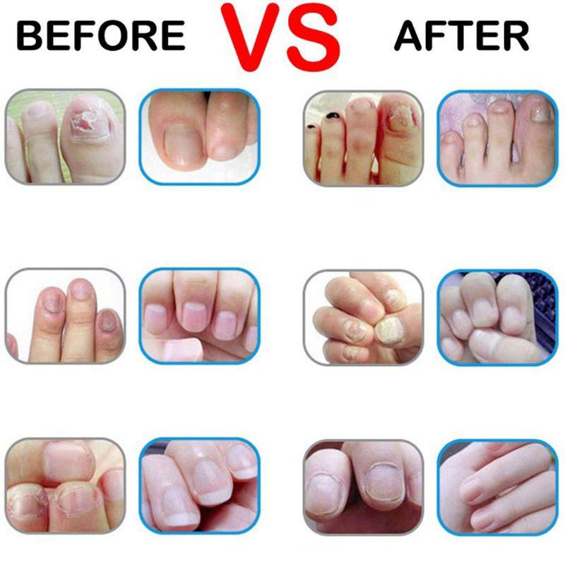 3 мл натуральные травяные грибок ногтей для лечения грибков ручка питательный раствор Уход за ногами Маникюр ремонт гель эссенция инструмент