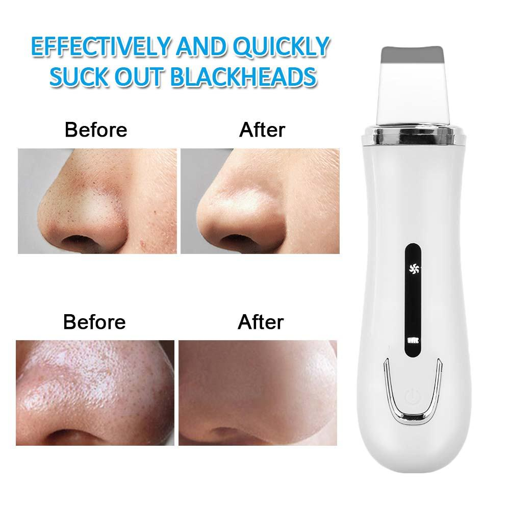 Limpiador de cabeza negra para blanqueamiento limpio y claro limpiador de piel ultrasónico blanco EMS equipo de eliminación de espinillas rápido efectivo Tira Tira LED SMD 2835 · Tiras LED flexible impermeable IP67 Chip LED 2835 con transformador
