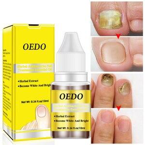 10ml Natural Bactericidal Nail Essence Oil Nail Repair Liquid Treatment Removal Nail Toe Fungus Nail Foot Care TSLM2