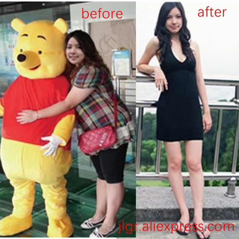 Cellulite Fat Burner For Slimming Products Anti Cellulite Parches Para Weight Loss Diet Pills Products Aliexpress