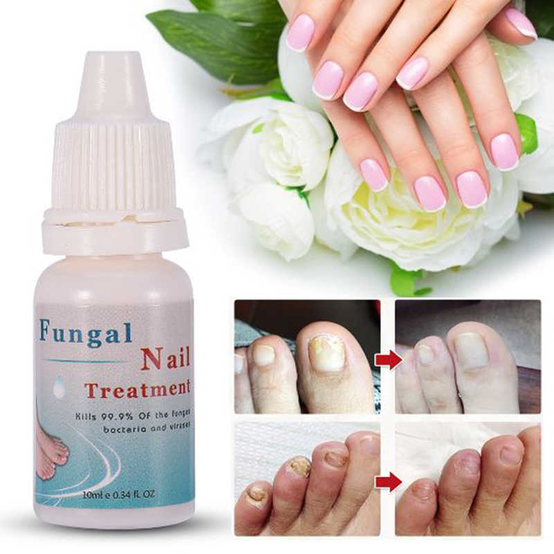 10ML Moisturizing Nail Polish Onychomycosis Nails Repair Liquid Nourishing Liquid Armor Sterilization Treatment Nails Care TSLM1
