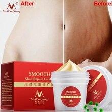 Cream Maternity-Skin-Repair Remove Stretch Mark Smooth-Skin Repaire Postpartum-Care Scars
