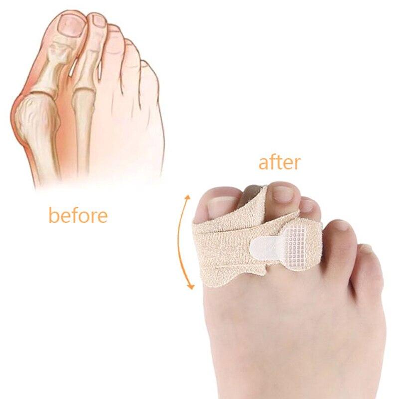 1 Pair Hallux Valgus Correction Silicone Bandage Foot Care Gel Bunion Protector Toe Separators Straightener Correctors 2 Styles