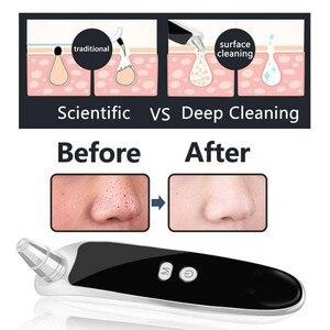 Image 5 - ไฟฟ้า Blackhead Remover สิวหัวดำเครื่องดูดฝุ่น Pore Skin Care เครื่องมือจมูก Deep Cleansing Suction เครื่อง