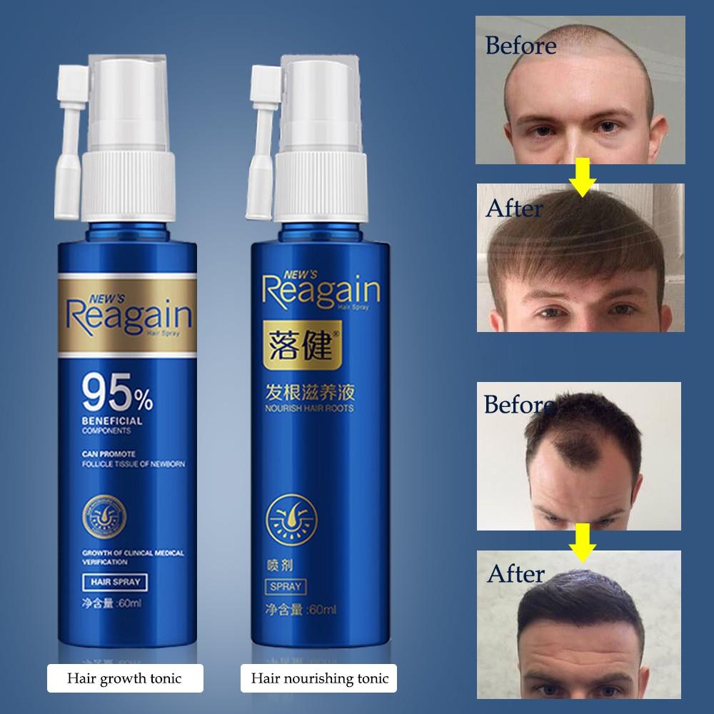 oleo natural para crescimento capilar oleo de ervas para controle do crescimento do cabelo ajuda no