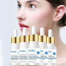 EFERO Сыворотка для лица против акне, гиалуроновая кислота, эссенция, крем для лица, отбеливание, лечение акне, уход за кожей, удаление акне, Усадочные поры, акне