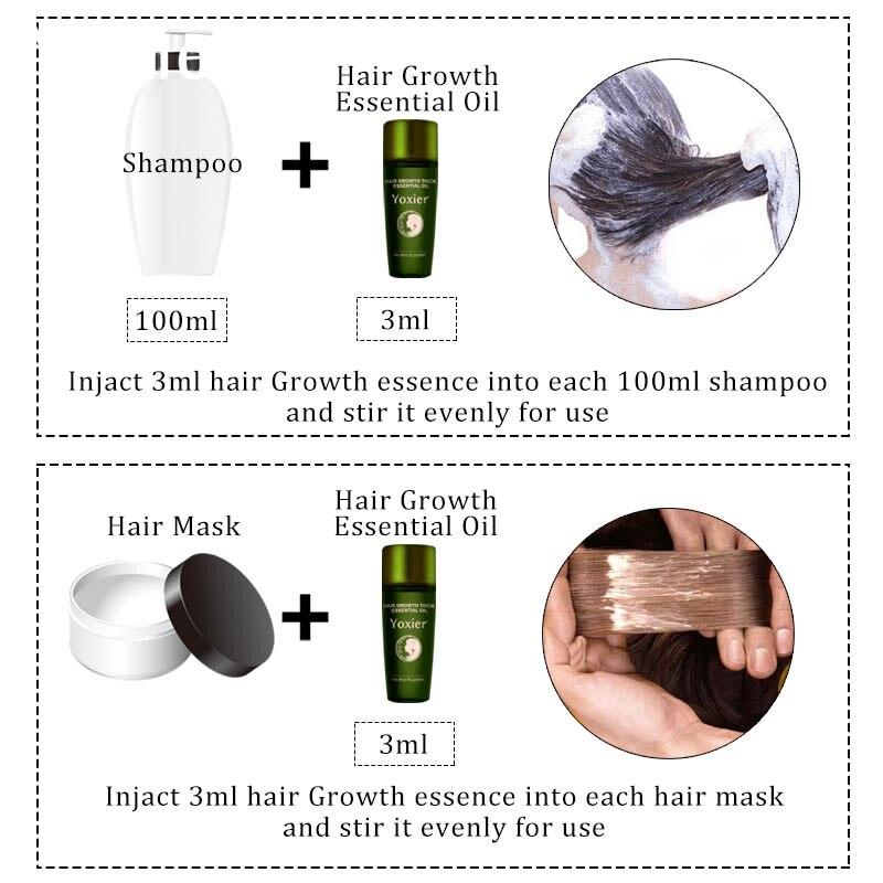 Купить с кэшбэком Yoxier Herbal Hair Growth Essential Oil Hair Care Hair Loss Product Promote Thick Fast Repair Growing Treatment Liquid 20ml/3Pcs