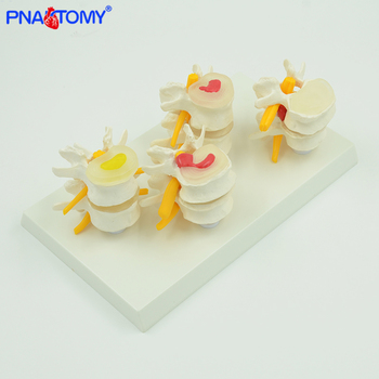 Medical props model human lumbar lesion spine structure display model 1 set medical teaching learning tool life size PNATOMY life size human lumbar vertebrae model vertebra lumbalis intervertebral disc anatomy skeleton medical teaching tool pnatomy
