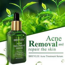 BREYLEE Acne Treatment Serum Face Facial Anti Acne Scar Removal Cream Skin Care