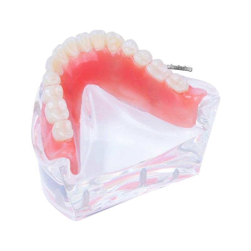 Modèle de dents d'overdenture dentaire mandibulaire intérieur amovible avec 2 implants pour étude d'enseignement des dents