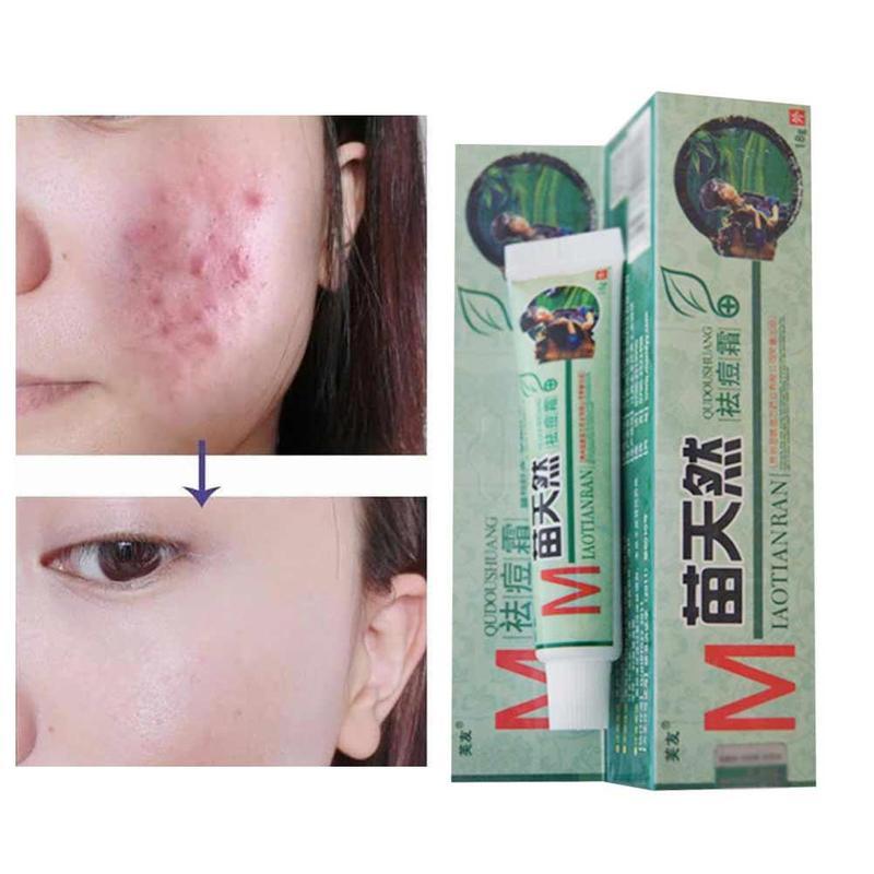 10pcs Fuyou Miaotianran Remove Acne Cream Germicidal Remove Mite And Moisturize Your Skin For Facial Treatment