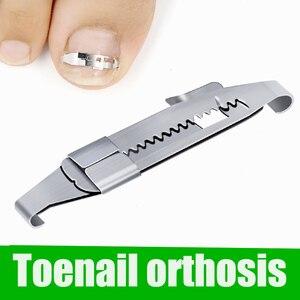 Горячая Распродажа, инструмент для коррекции вросших пальцев ног, инструмент для выпрямления ногтей