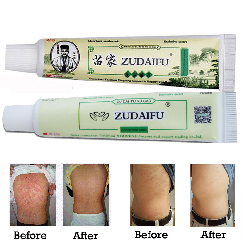Original Zudaifu Cream Psoriasis Skin Eczema Treatment Ointment Body Care Psoriasis Dermatitis Eczema Creme Antibacterial Cream