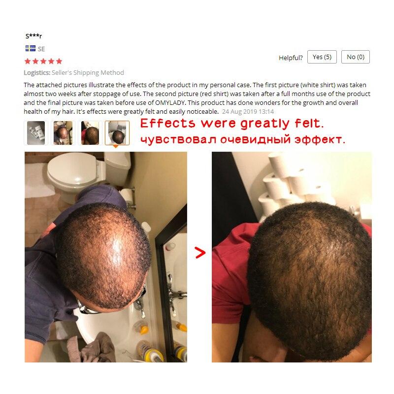 OMY LADY Hair Care Hair Growth Essential Oil Essence Original Authentic 100% Hair Loss Liquid BODY Care Beauty Dense Hair Growth 3
