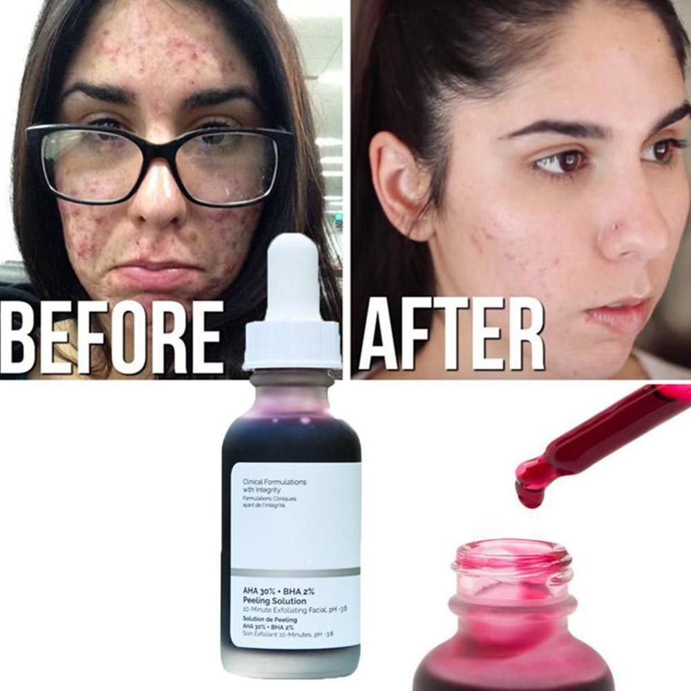 The Ordinary AHA 30% + BHA 2% Peeling Solution 30ml 10mins Exfoliating Mask Facial Serum Remove Acne Scars Whitening Skin Care