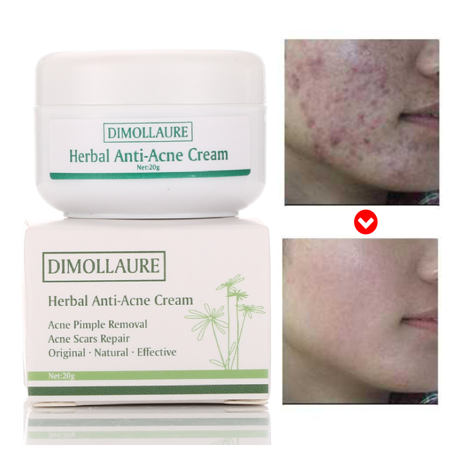 Dimollaure 20g Acne Treatment Blackhead Removal Anti Acne Cream Oil Control Repair Comedone Pimple Acne Scar Remove Face Care