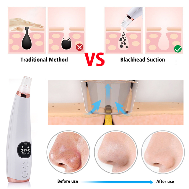 Facial Cleaner Nose Blackhead Remover Deep Pore Acne Pimple Removal Vacuum Suction Diamond T Zone Beauty Tool Face Household SPA 3